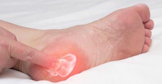 Topuk Dikeni teşhis ve tedavisinde önemli 8 madde